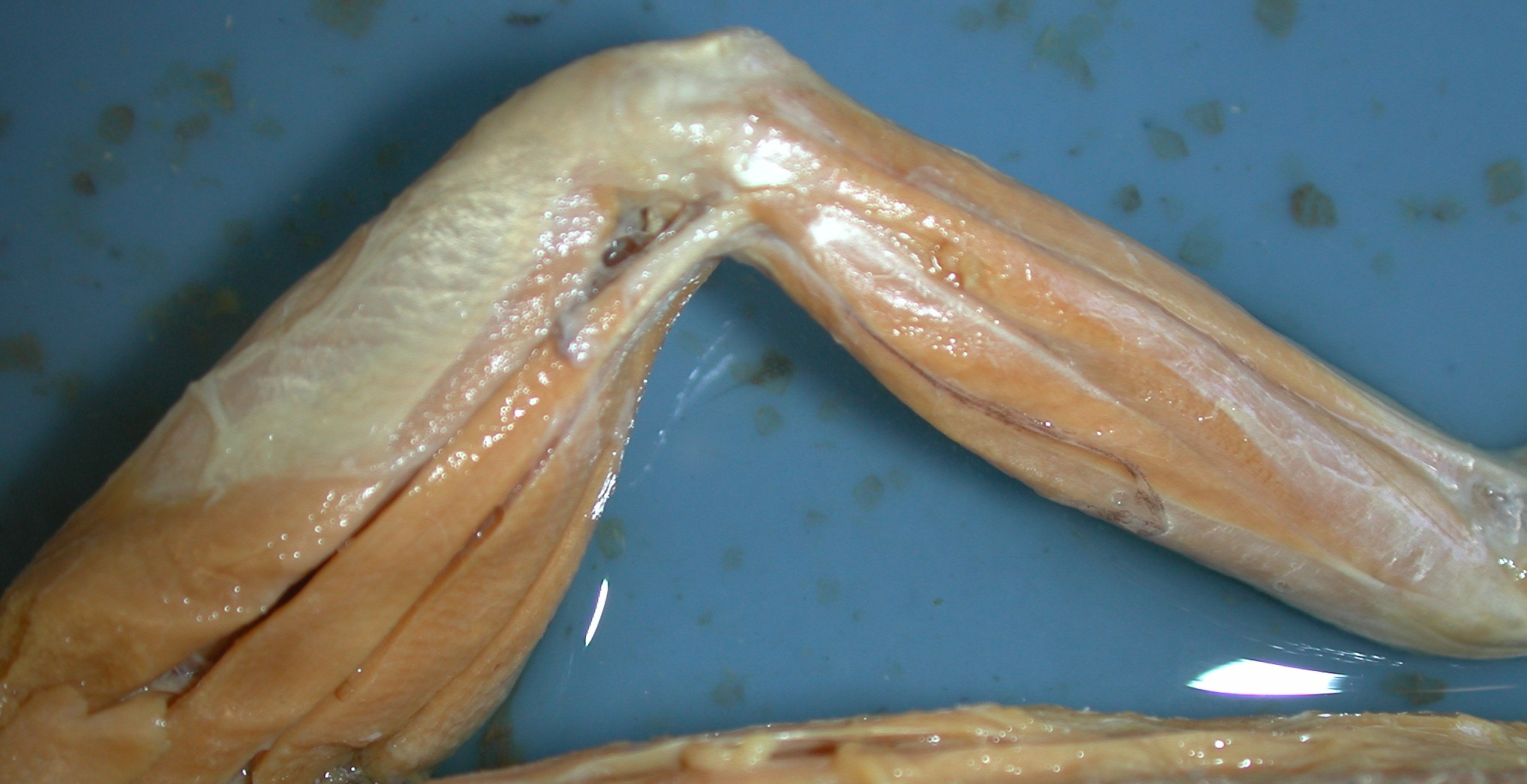 Mystery Dissection Whats In Johns Freezer Chicken Leg Diagram For Pinterest 9