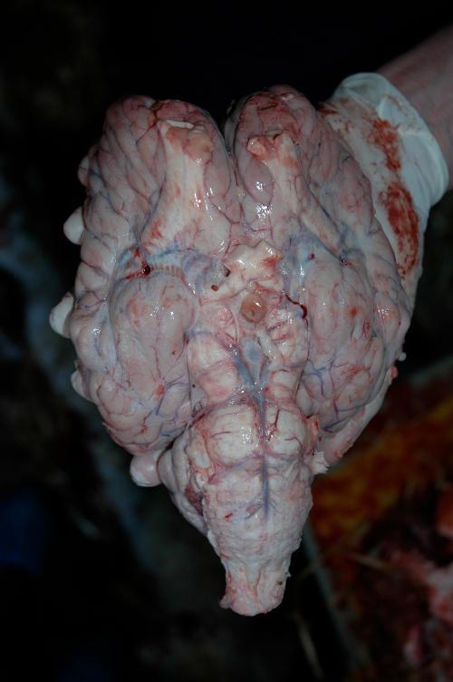 The brain.