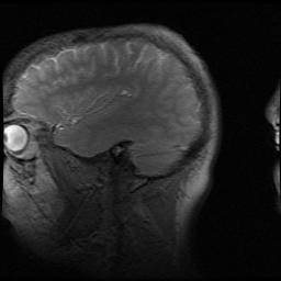 my-brain1