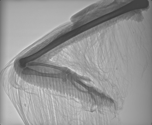 X-ray technology has revolutionized anatomical studies; what's next? Ponder that as this ostrich wing x-ray waves goodbye.
