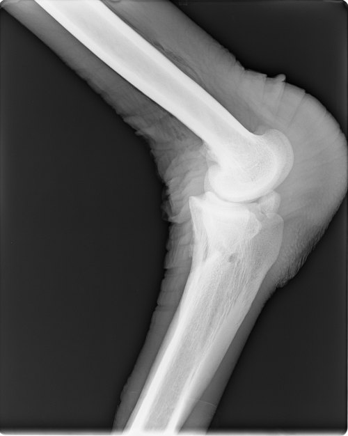 Ankle- note the big calloused pad that ostriches rest on (right side of image).