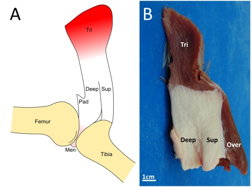Fatty knee extensor tendon of emus, lacking a patella. The fatty tissue is split into superficial (Sup) and deep regions, with a pad corresponding to the fat pad in other birds continuous with it and the knee joint meniscus (cushioning pad). The triceps femoris (knee extensor) muscle group inserts right into the fatty tendon, continuing over it. A is a schematic; B is a dissection.