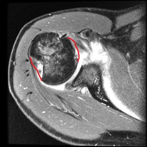 My left shoulder in top cross-sectional view, with the missing parts of my humeral head crudely outlined in red. There's more amiss here, too.